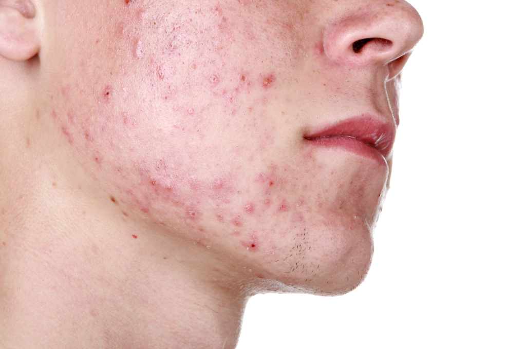 Acne Can be an Embarrassing Problem and Difficult to Treat