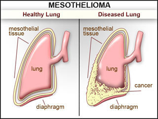 meso_lung