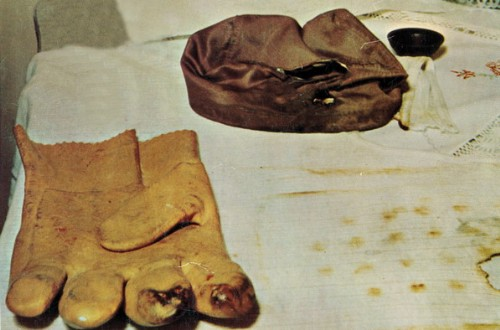 Photograph showing Michalak's burnt glove, cap and shirt. Source from the cover of his book, My Encounter with the UFO.