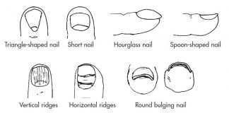 These are 24 most important Facts about Nail, and the following symptoms indicate the specific conditions of color, shape and teture of nails.