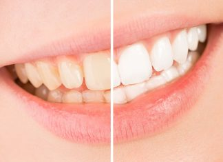 Causes of Tooth Discoloration is even in small children can experience tooth discoloration, yellowing and staining for many different reasons