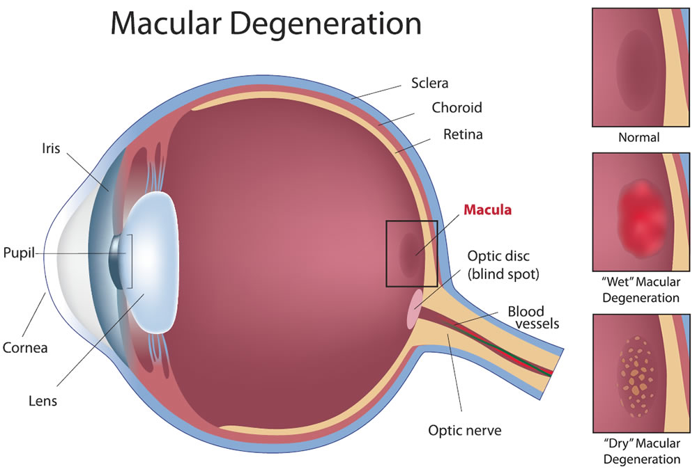 If you have macular degeneration, you should be under the care of your doctor. Do eat a balanced diet rich in fruits and vegetables and low in fatty foods and cholesterol.