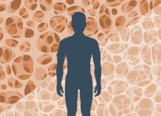 Osteoporosis is a common condition, affecting more than 24 million Americans, according to U.S. government figures.