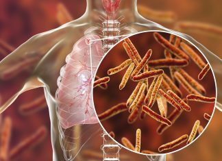 Is TB Curable Disease? TB is a contagious disease and when a patient coughs. The TB bacteria in their mucus spread to other people through the air, thus making the other person a TB patient.