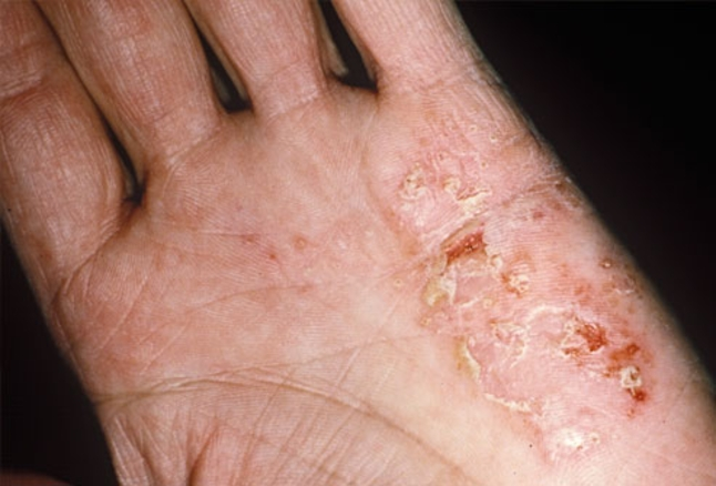 """Eczema describes an itchy inflamed skin rash comes from Greek word means """"Boil Over"""" & used interchangeably with another term, dermatitis."""