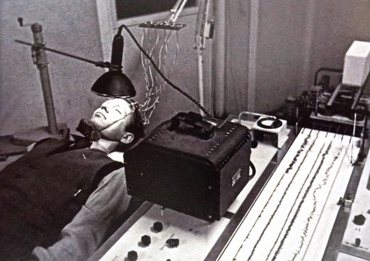A person undergoing an EEG Test in the1950s. Around this time the procedure was first used to look foreign of epilepsy in patients.